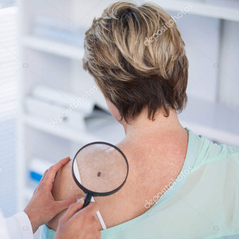 Woman Having Skin Checked