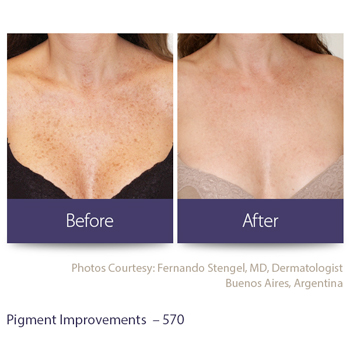 Before and after pigment improvements from laser treatment