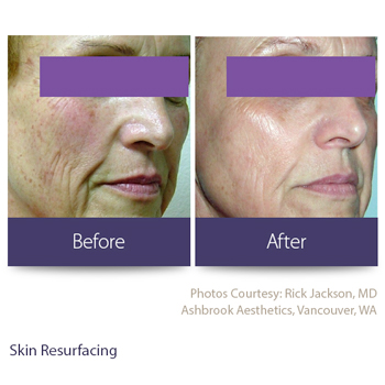 Before and after skin resurfacing from laser treatment