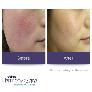 Laser treatment before and after redness on cheeks